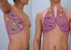 Perkussionspunkte der Lungenuntersuchung von der Seite und von vorn